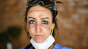A woman nurse has bruising and discoloration on her face from wearing goggles and masks for long amounts of time.